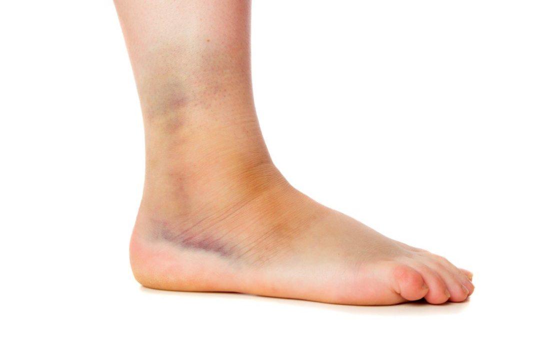 Distorsione alla caviglia: la fisioterapia