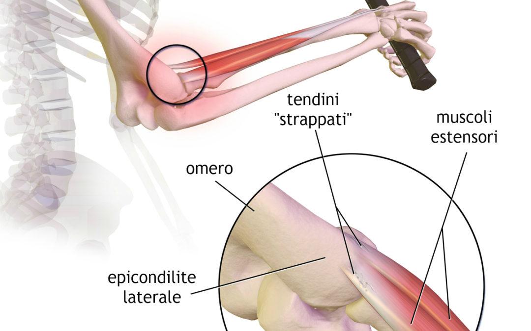 Epicondilite: come curarla velocemente con fisioterapia balduina