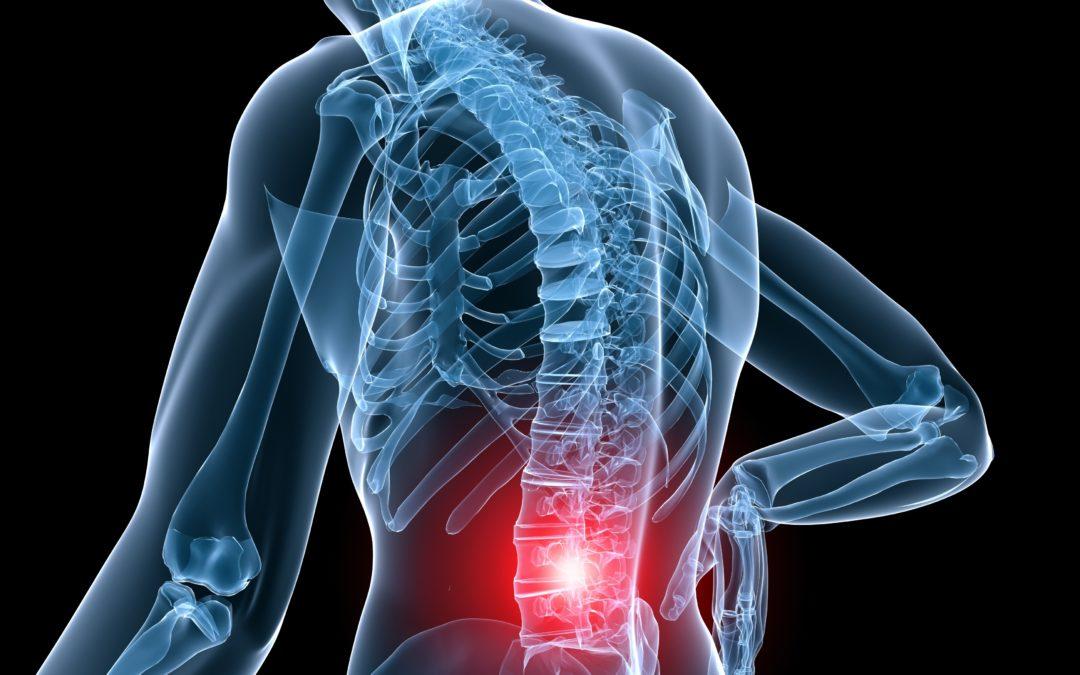 Come guarire dal mal di schiena lombare