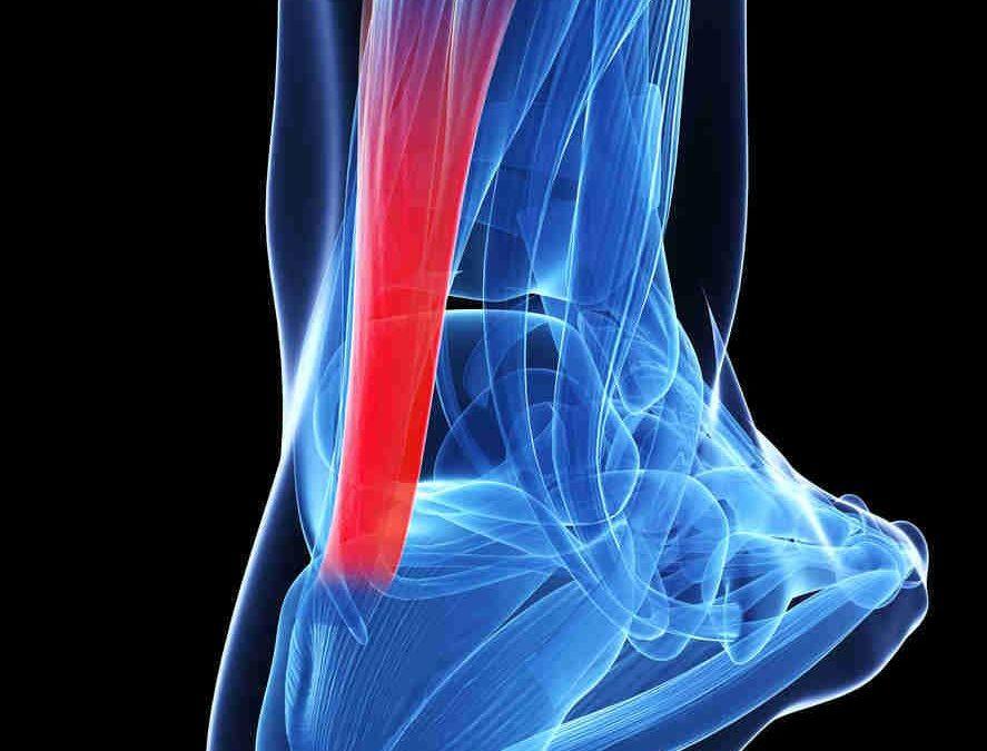 Sintomi dell'infiammazione al tendine d'Achille