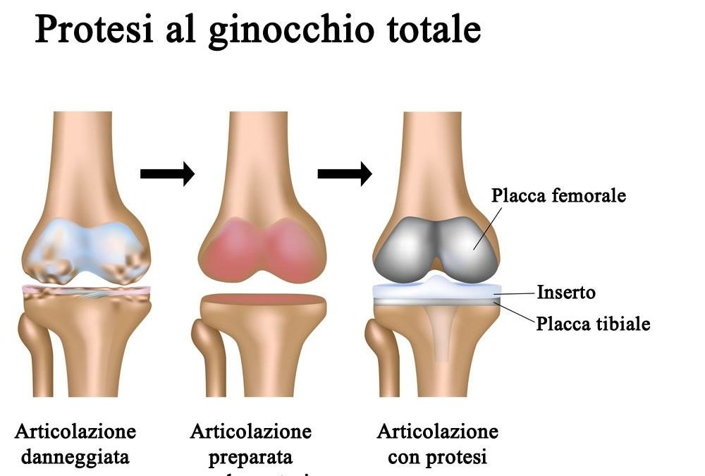 Protesi di ginocchio: quali esercizi fare a casa