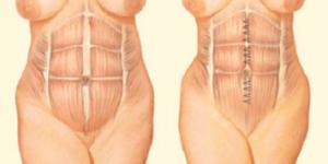 Diastasi Addominale e Intervento Chirurgico