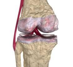 Artrosi al ginocchio: come ridurre il dolore